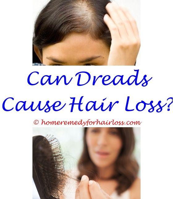 Best Hair Growth | Male hair loss, Hair loss and Female hair loss