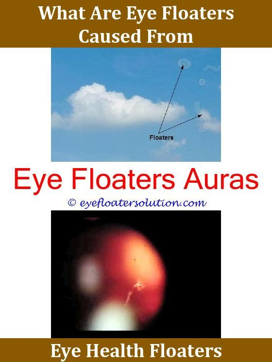 eye floaters light sensitivity | Creativmakeup co