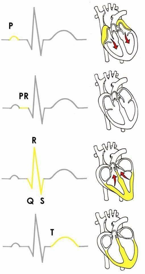 13+ Interpreting QRST patterns EKG