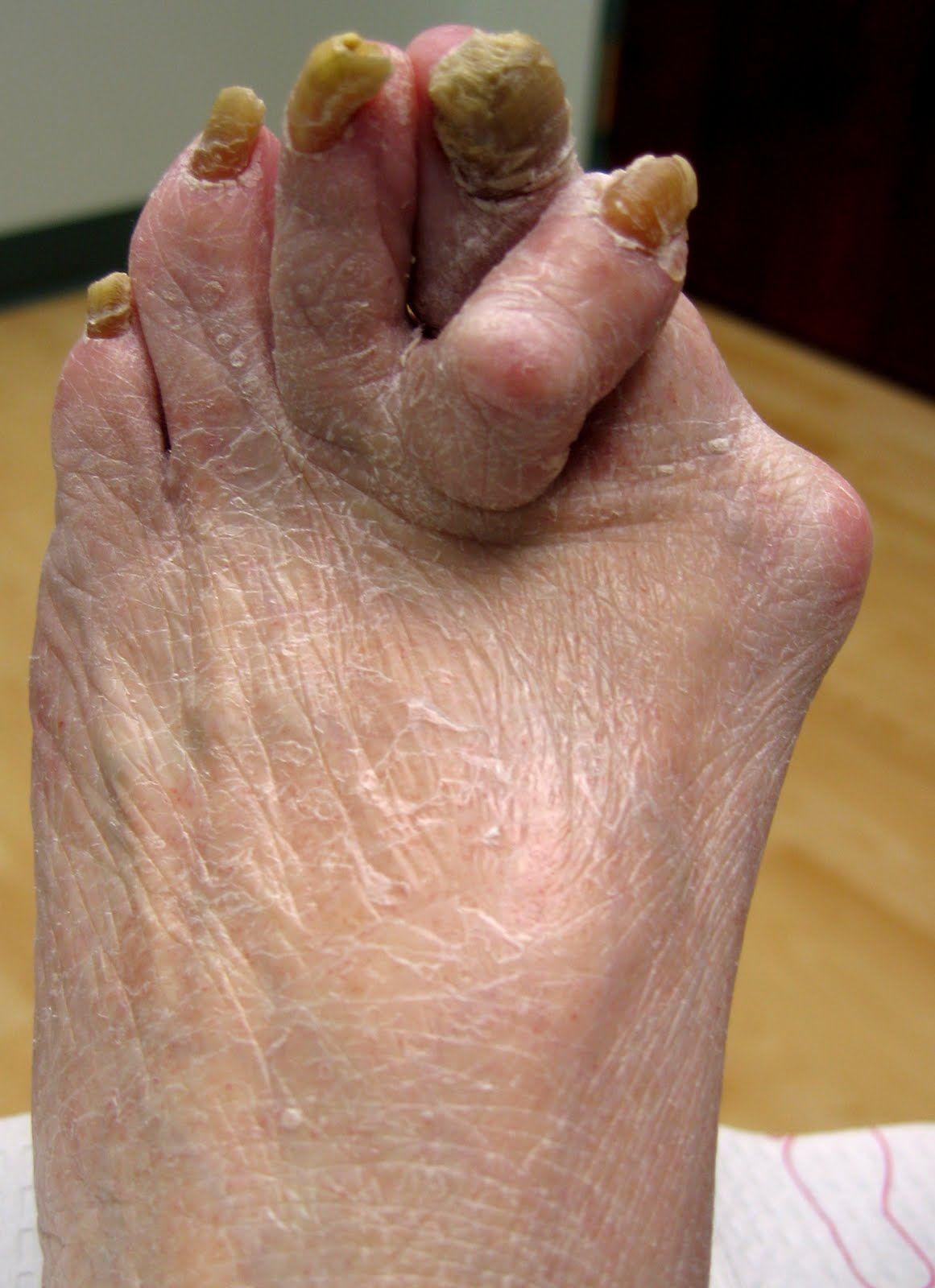 Ugly Toe Pics : Funnies