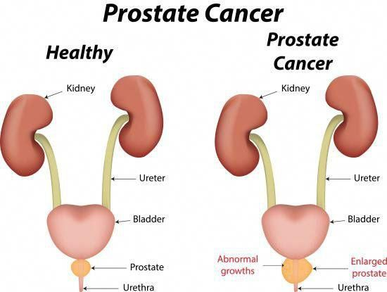 some of the most effective home remedies for prostate cancer includesome of the most effective home remedies for prostate cancer include the use of fish oil, soy, vitamin c, selenium, flaxseed, and pomegranate juice