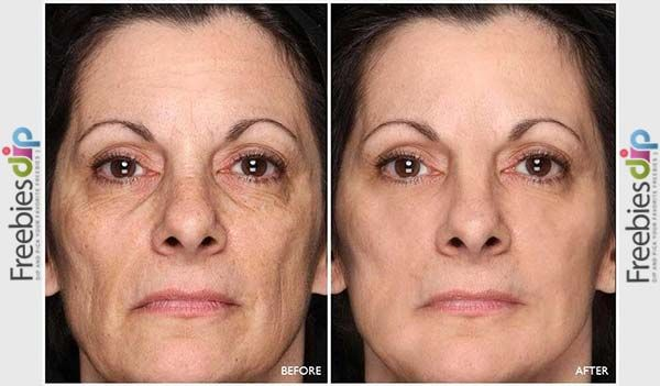 Beverly Hills Md Lift Firm Sculpting Cream Uk Anti Aging Skin Treatment Anti Aging Skin Products Facial