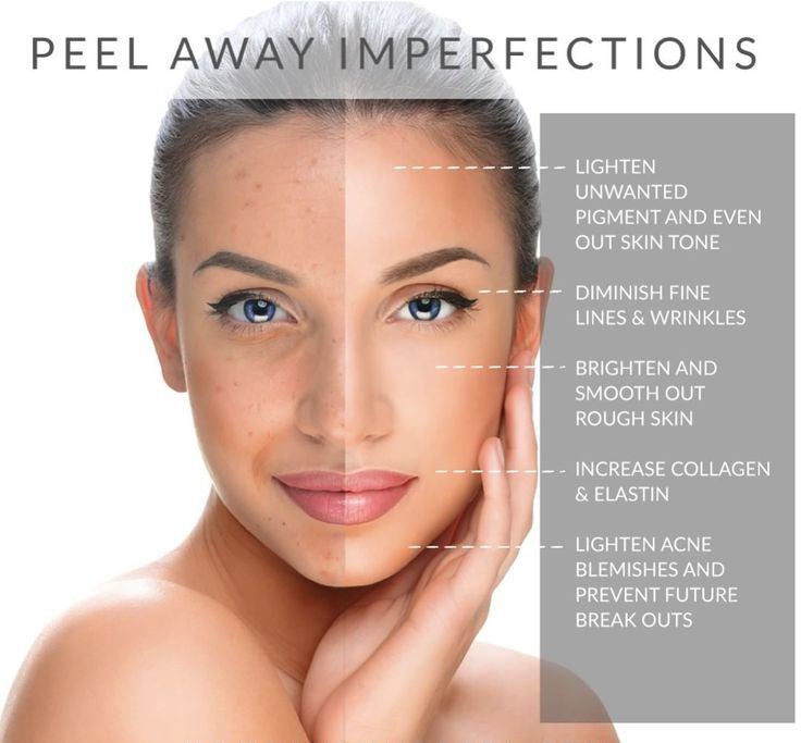 Innovative Aesthetics Has Some Amazing Chemical Peels For Almost Every Skin Type Give Us A Cal Skin Care Treatments Chemical Peel Peeling Skin