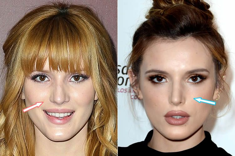 Plastic Surgery - Before and After - Before and after photos