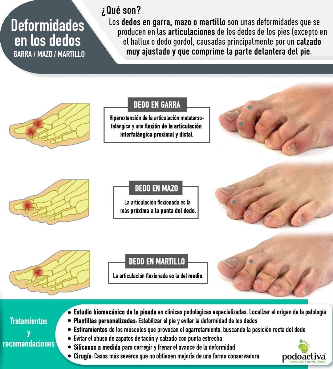 Dedos En Garra Mazo Y Martillo Qué Son Causas Y Tratamientos De Estas Deformidades De En 2020 Remedios Para El Dolor De Rodilla Remedios Para Juanetes Dedos Del Pie