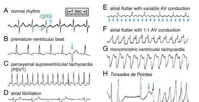 Heart Rhythms Made Easy | EMS | Heart rhythms, Cardiac rhythms, Ekg