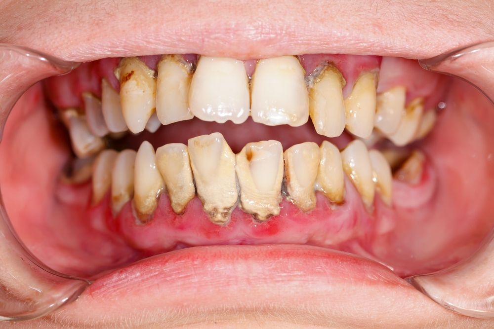 How to naturally remove plaque from your teeth at home