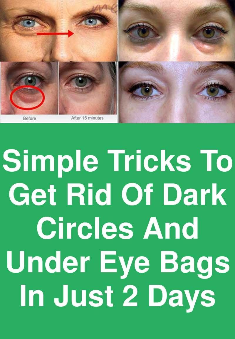 Simple tricks to get rid of Dark circles and under Eye bags in just 2 days #darkcircle