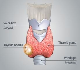 Thyroid Nodules Types Of Thyroid Nodules And Treatments Thyroid