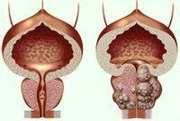 Niektorí ľudia by mali tendenciu vyhýbať sa téme prostata, pretože prostata patrí k pohlavným orgáno...