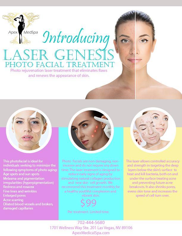 Laser Genesis Photo Facial Las Vegas Laser Facial Laser Treatment Facial Treatment