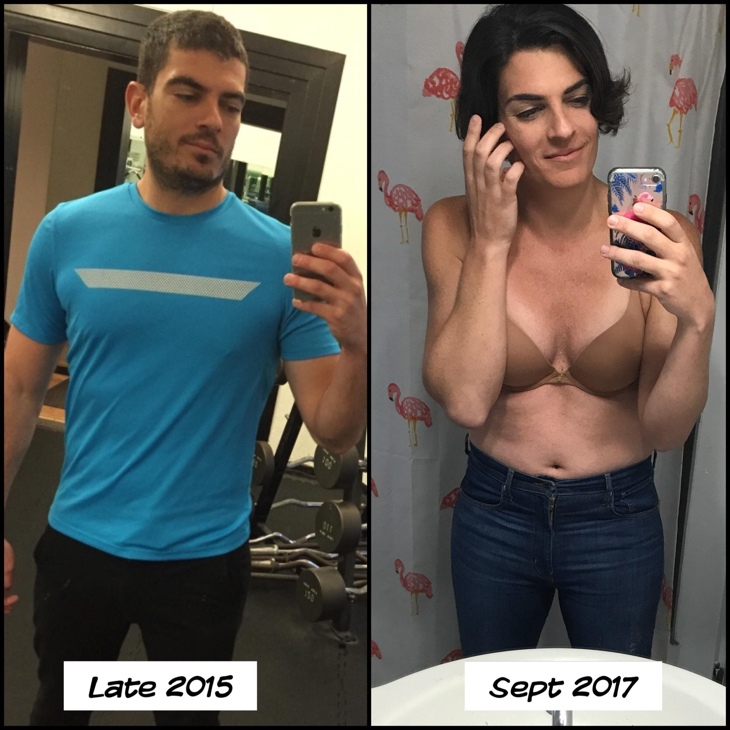 Female to male transsexual before and after-3446