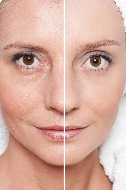 Consumer Reports On Best Wrinkle Cream In 2020 Wrinkle Cream Skin Care Wrinkle