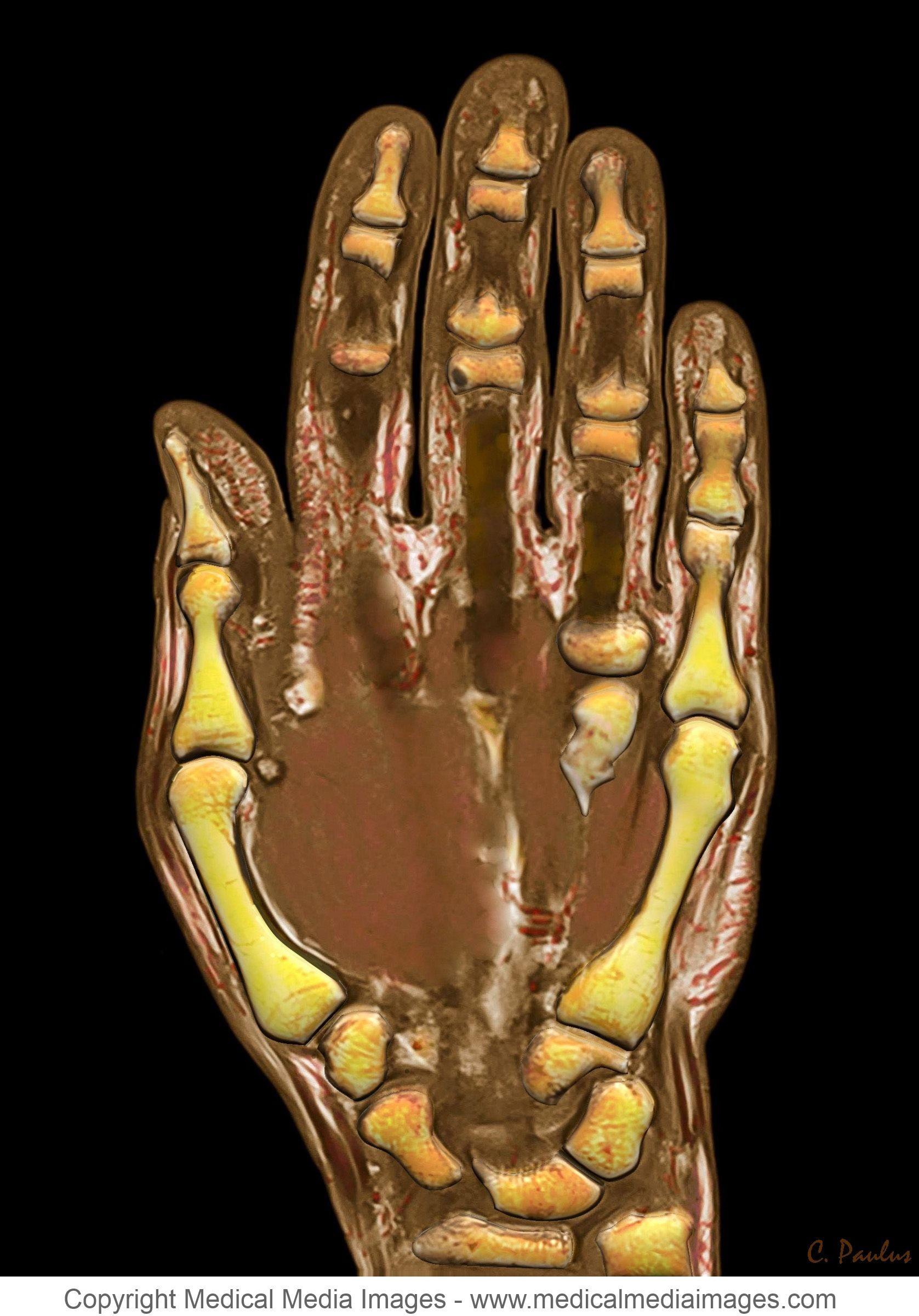 A 3-D Color MRI of the Human Hand. Ideal for Medical Websites and ...