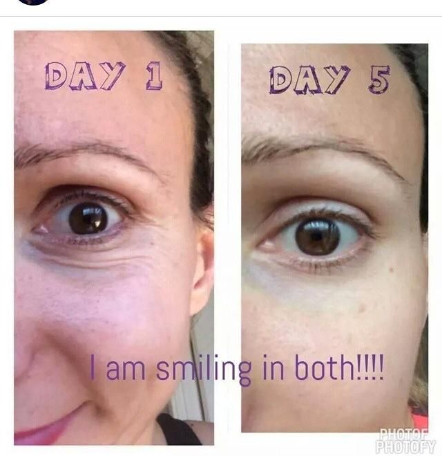 22c78e8ea0a How to get rid of bags under eyes, crows feet, wrinkles. Natural based skin  care. Younique uplift eye serum is cruelty free!