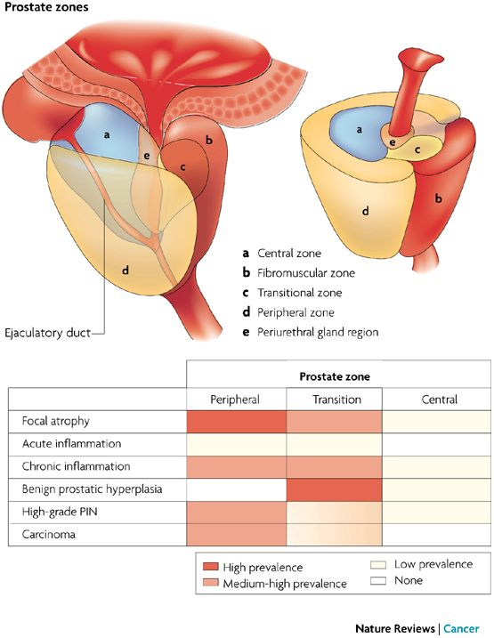 Wk 6 Prostate Inflammation In Prostate Carcinogenesis Prostate Benign Prostatic Hyperplasia Inflammation