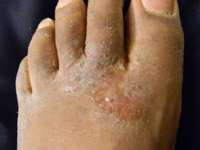 Fungal nail infections: Poor hygiene could be to blame for ...