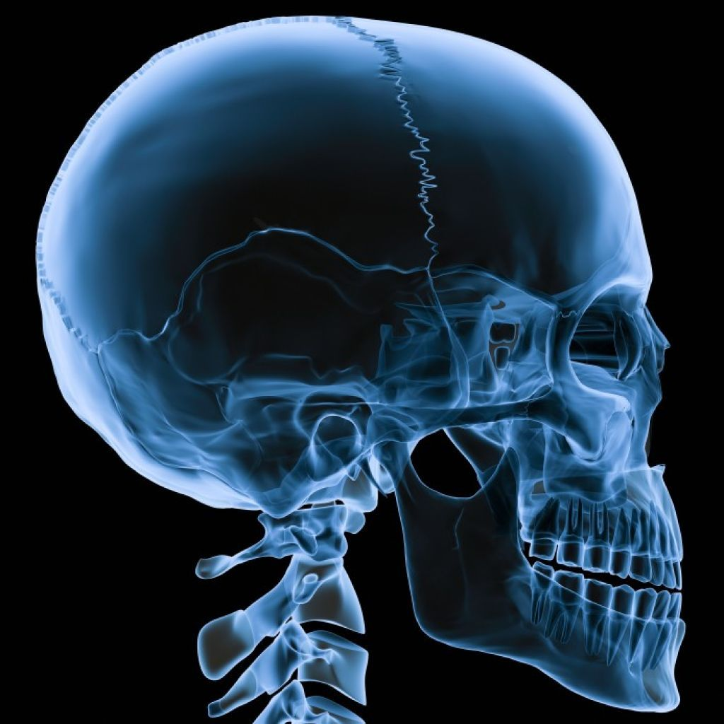 Skull X ray for head | Human Anatomy Body Picture | Designs ...
