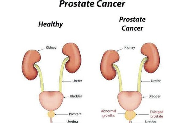 Prostate cancer is a disease which only affects men. Read this article to know exactly what is Prostate Cancer.