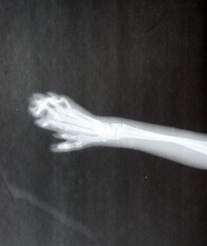 x ray of hemingway cat