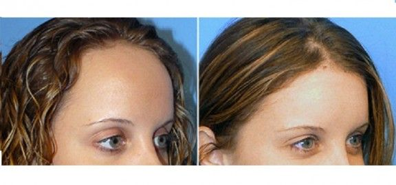 Is There A Scar Free Hair Transplant Hair Transplant Free Hair Hair Loss Remedies