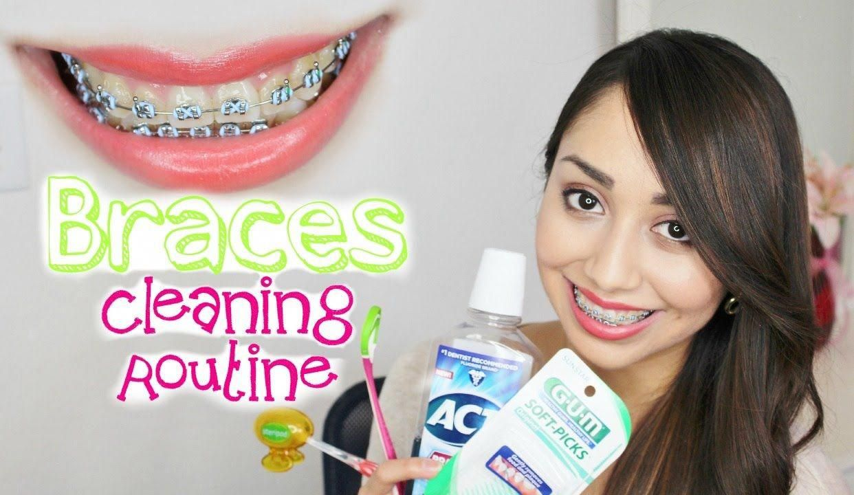 Braces Cleaning Routine Best products for braces, floss