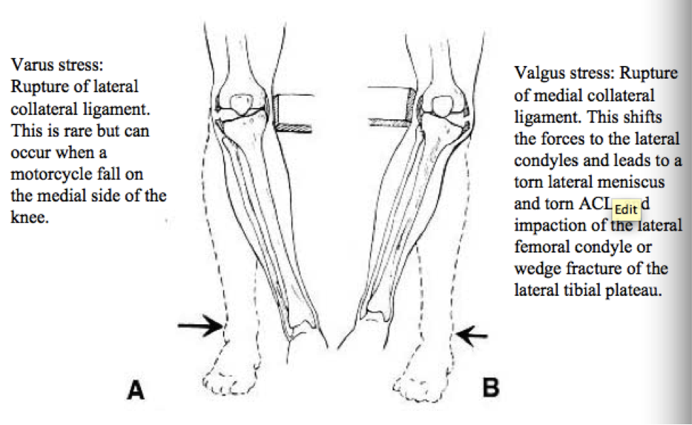 Valgus stress = external rotation = medial lig. tear Varus