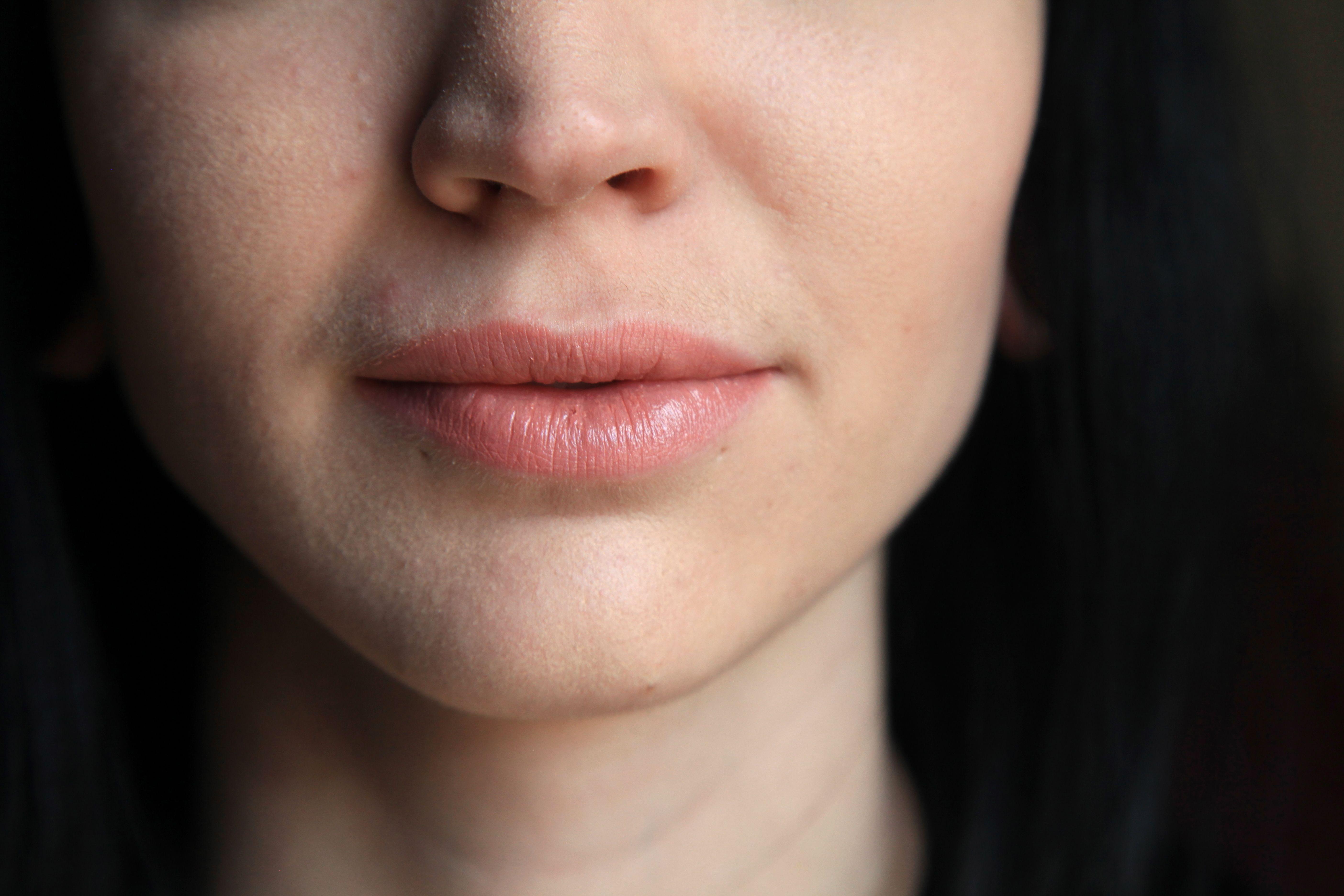 Hairy upper lip