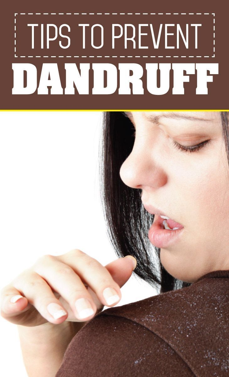 how to get rid of dandruff and scalp build up