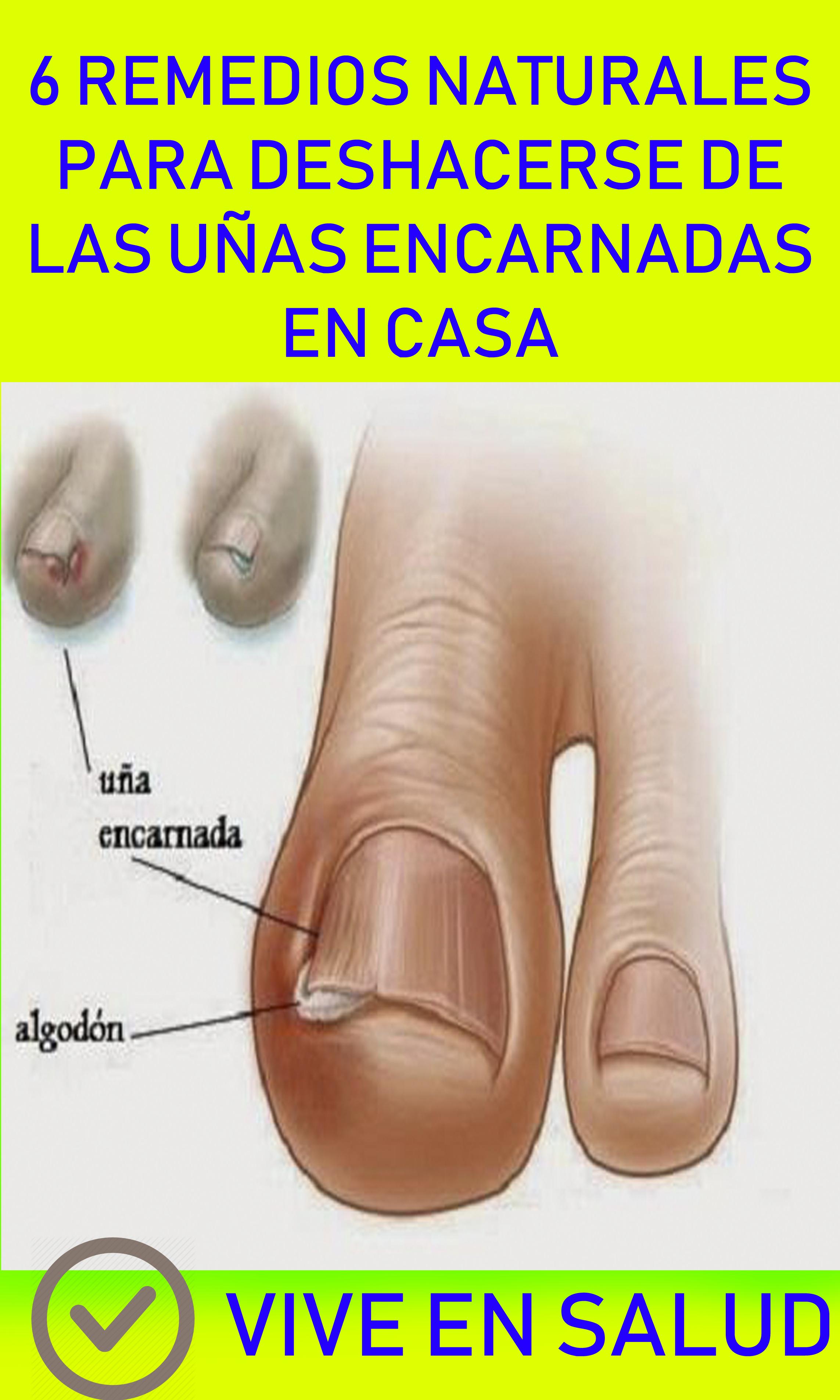 remedio para las uñas encarnadas de los pies
