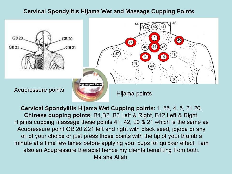 Hijam cupping points for Cervical spondylitis | Cupping ...