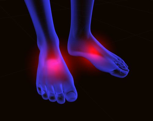 Efficacy of Inhaled Cannabis on Painful Diabetic Neuropathy