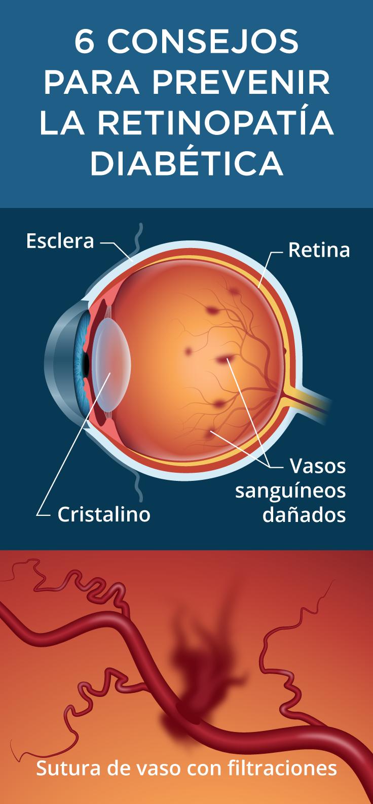 perrillas en el ojo sintomas de diabetes