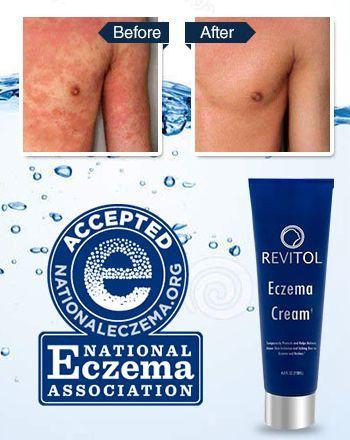 Revitol Eczema Cream Revitol Natural Eczema Dermatitis Cream