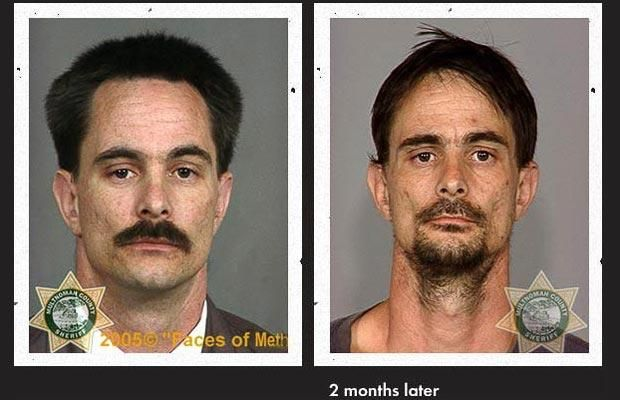 Faces Of Meth The Long Term Effects Of Crystal Meth Or