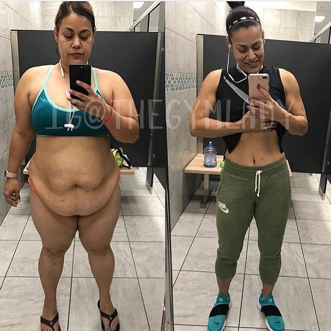 25 Insane Weight-Loss Transformation Photos
