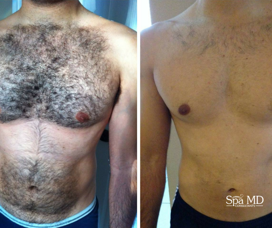 Laser Hair Removal Is For Both Men And Women Laser Hair Removal