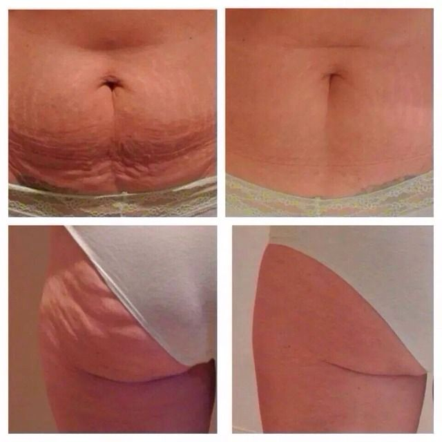 Get Rid Of That Saggy Loose Skin, Cellulite And So Much