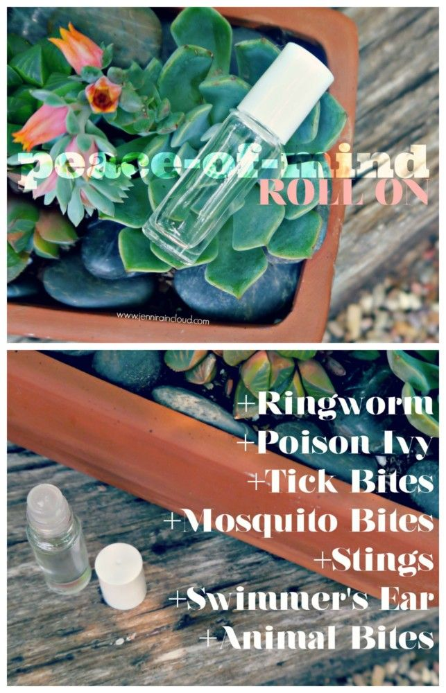 A Diy Ringworm Roll On Among Other Things Natural Acne Treatment