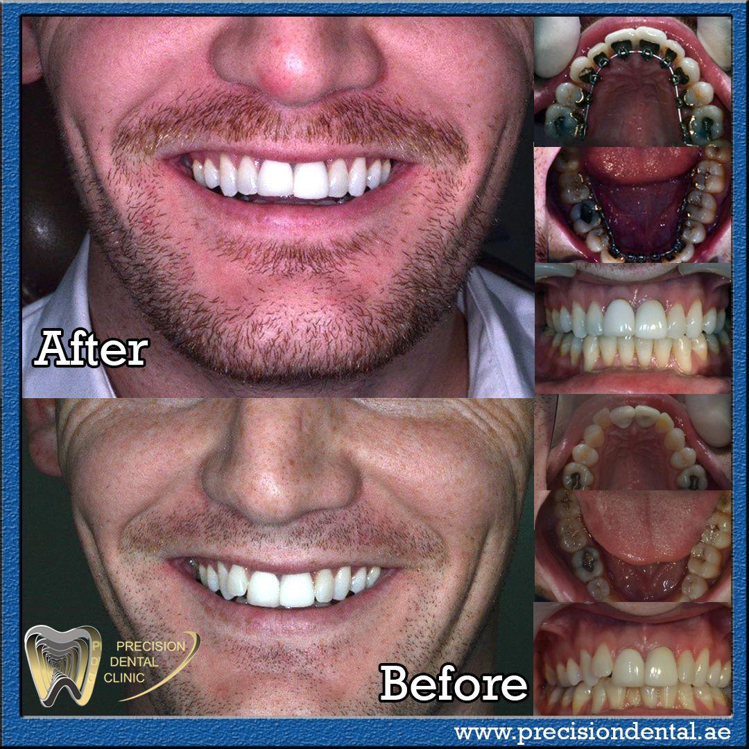 Incognito Invisible Braces In Dubai Precision Dental Clinic Dental Care Clinic Braces Treatment Dental Clinic