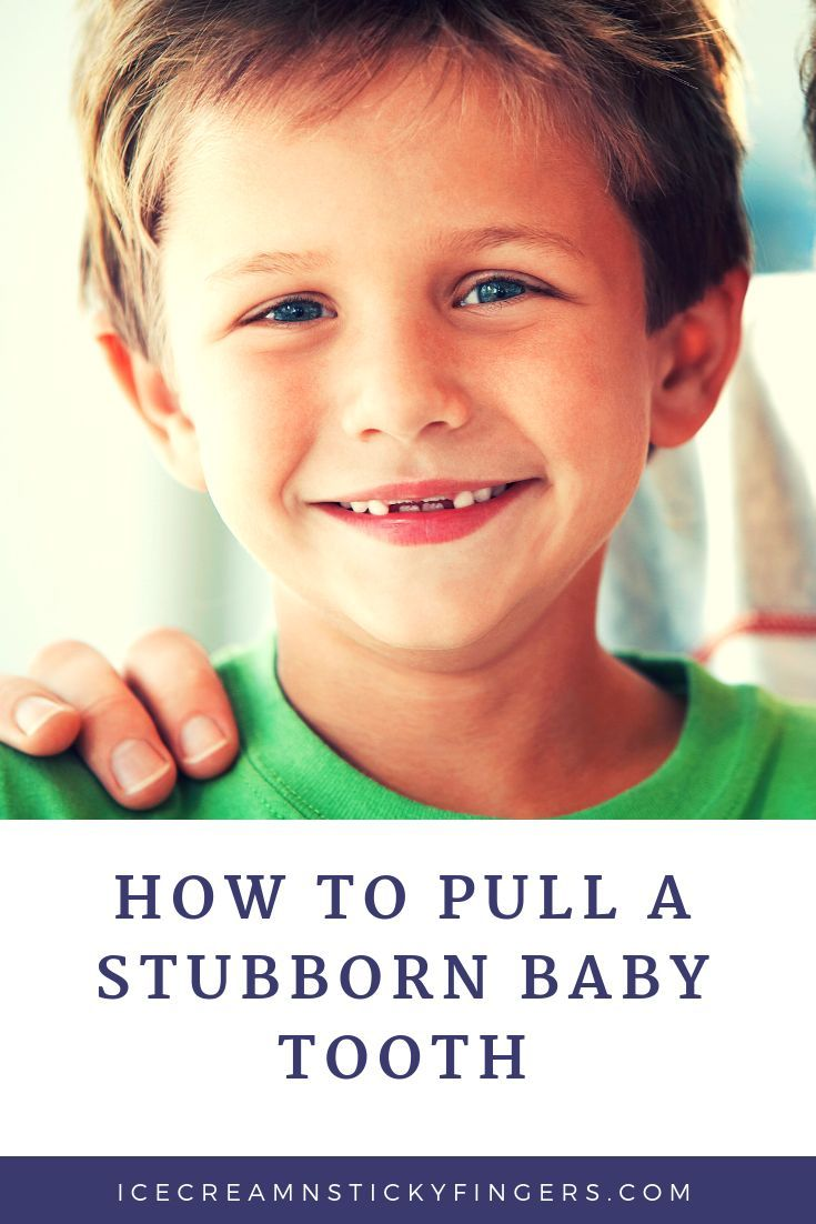 How to pull a stubborn baby tooth gentle parenting
