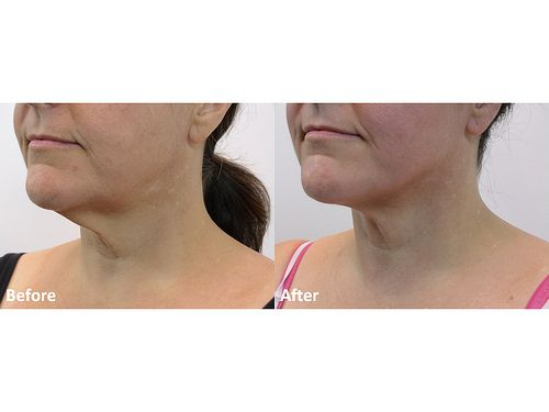 dr darm lipolift before and after tl slide4 you too can get rid of that turkey neck or double chin visit dr darm and call at 503 697 9777 to