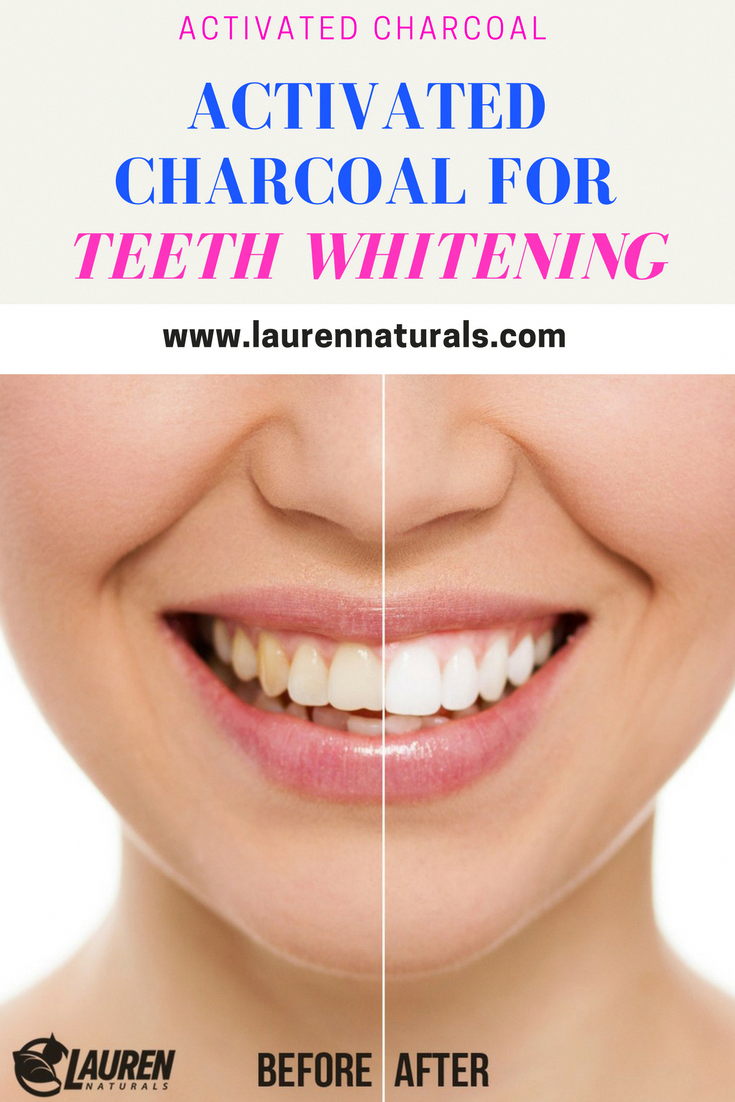 Activated Charcoal For Teeth Whitening All You Need Is Some