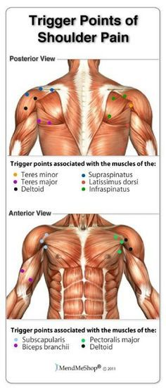 Trigger points of shoulder pain | Shoulder | Pinterest ...
