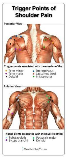 Trigger points of shoulder pain   MASTER CLASS ESPALDA   Pinterest ...