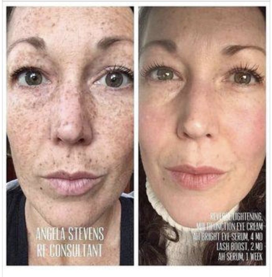 R F Reverse Regimen Rodan And Fields Life Changing Skincare Rodan And Fields Consultant