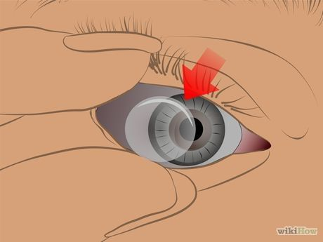 How To Remove Stuck Contact Lenses Contact Lenses Contact Lenses Tips Soft Contact Lenses