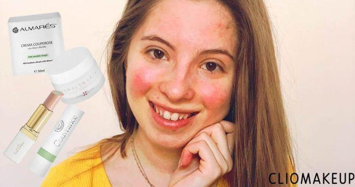 Couperose viso 🙄 i prodotti migliori e i rimedi più efficaci