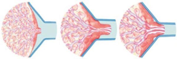 Pin On Breast Pump Mit