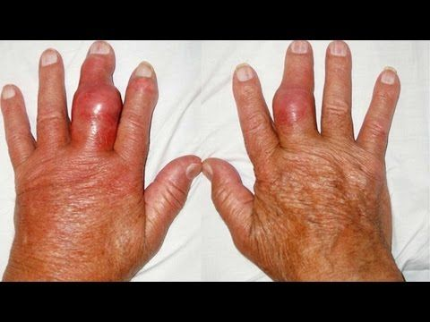 foods that affect uric acid gout remedy essential oils gout pain baking soda